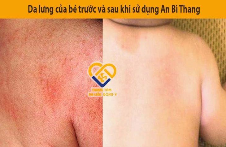 Phần da lưng bị tổn thương nặng của bé cải thiện sau khi được điều trị với An Bì Thang
