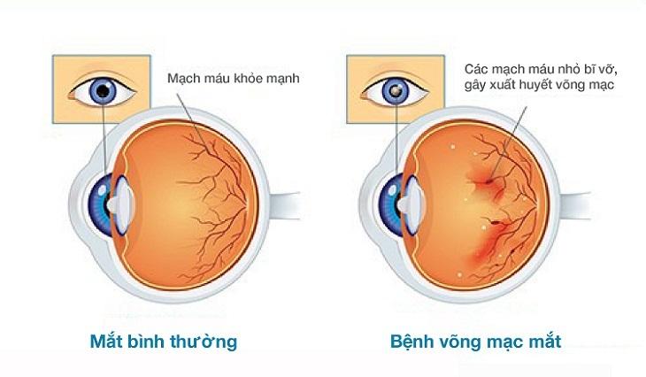 Biến chứng của đái tháo đường gây ảnh hưởng tới thị lực của người bệnh