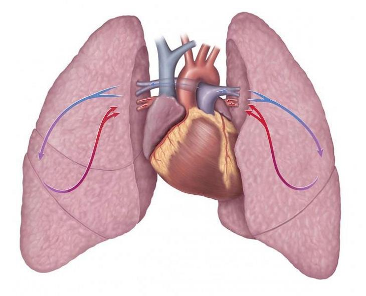 Cầu nối chủ phổi được tiến hành khi người bệnh bị mắc bệnh tứ chứng Fallot