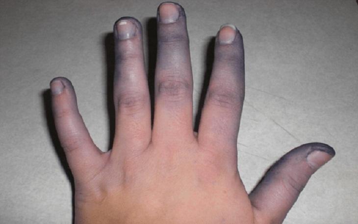 Đầu ngón tay ngón chân và môi tím tái là triệu chứng lâm sàng của Fallot
