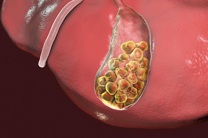 Sỏi mật đe dọa nguy cơ biến chứng nếu không được điều trị sớm