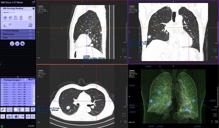 Chụp CT ổ bụng giúp phát hiện ra nhiều vấn đề về sức khỏe