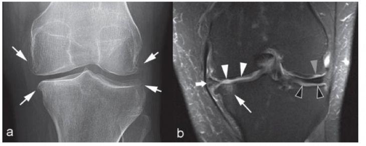 Chụp MRI sẽ giúp phát hiện chính xác những tổn thương ở đầu xương, dây chằng và sụn