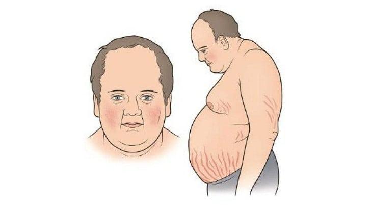 Hội chứng Cushing là một bệnh lý hiếm gặp nhưng gây ra nhiều ảnh hưởng tới chất lượng cuộc sống