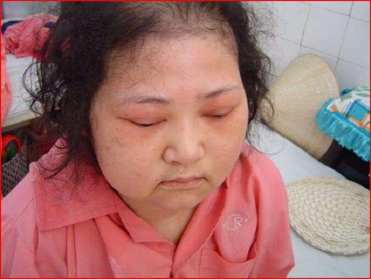 Bệnh có triệu chứng mắt nhìn mờ, đau đầu, bán manh