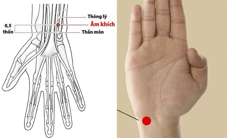 Hình ảnh huyệt thần môn trên cơ thể người