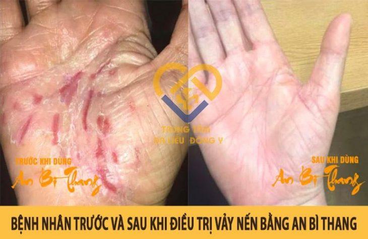 Tình trạng bệnh nhân trước và sau khi dùng An Bì Thang điều trị vảy nến