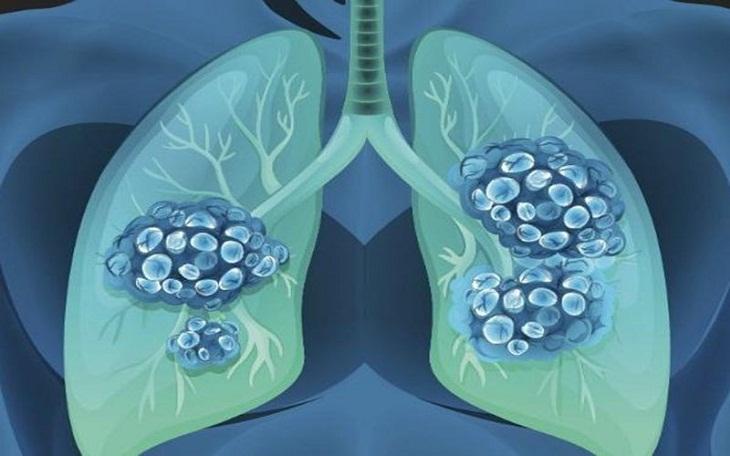 Những đối tượng bị suy hô hấp thường được chỉ định xét nghiệm khí máu động mạch