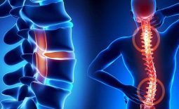 Lao cột sống: Các phương pháp chẩn đoán và điều trị