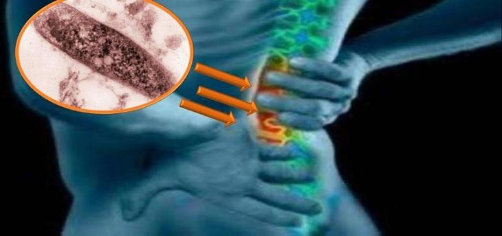Mỗi người bệnh sẽ được áp dụng phác đồ điều trị khác nhau căn cứ vào thể trạng và mức độ nghiêm trọng của bệnh