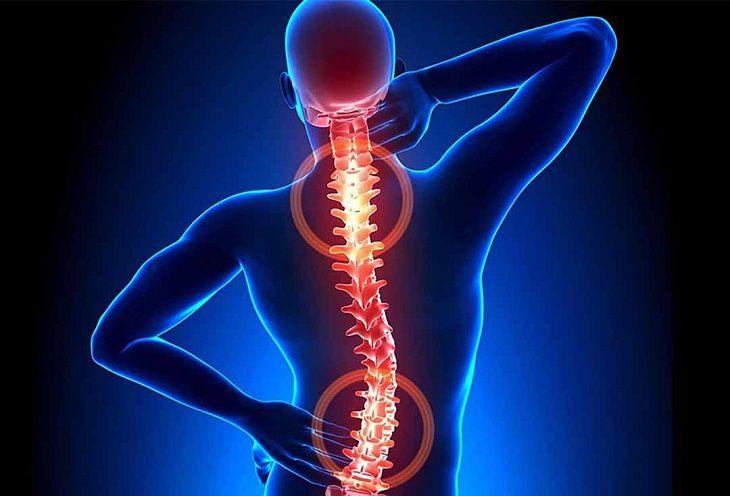 Lao cột sống là một căn bệnh xương khớp nguy hiểm