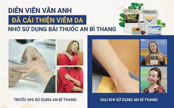 Triệu chứng viêm da cải thiện chỉ sau 1 liệu trình điều trịị
