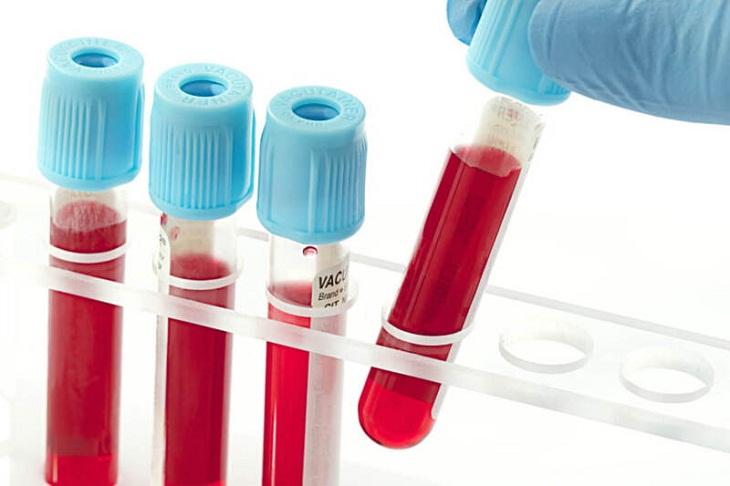 Rối loạn clo trong máu cũng là nguyên nhân gây rối loạn nước điện giải và toan kiềm