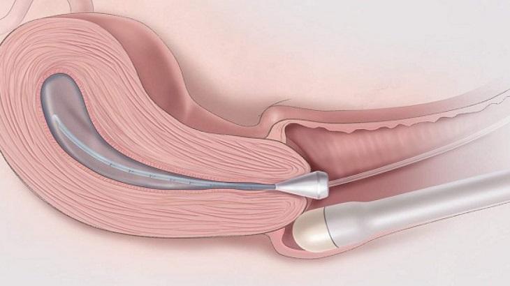 Siêu âm bơm nước buồng tử cung chẩn đoán bất thường ở cổ tử cung và hai vòi trứng