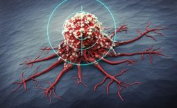 Khối u hình thành từ các tế bào thần kinh nội tiết