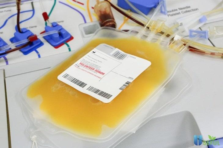 Điều trị viêm mạch dị ứng bằng phương pháp lọc huyết tương