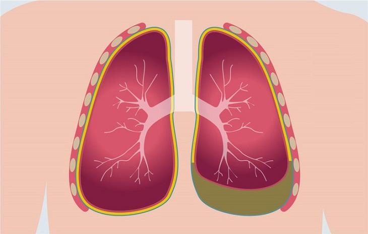 Người bệnh có thể được thực hiện các xét nghiệm tràn dịch màng phổi và sinh thiết để chẩn đoán bệnh chính xác hơn