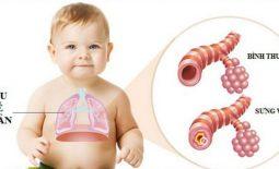 Bệnh viêm phổi trẻ em: Nguyên nhân, chẩn đoán và cách điều trị