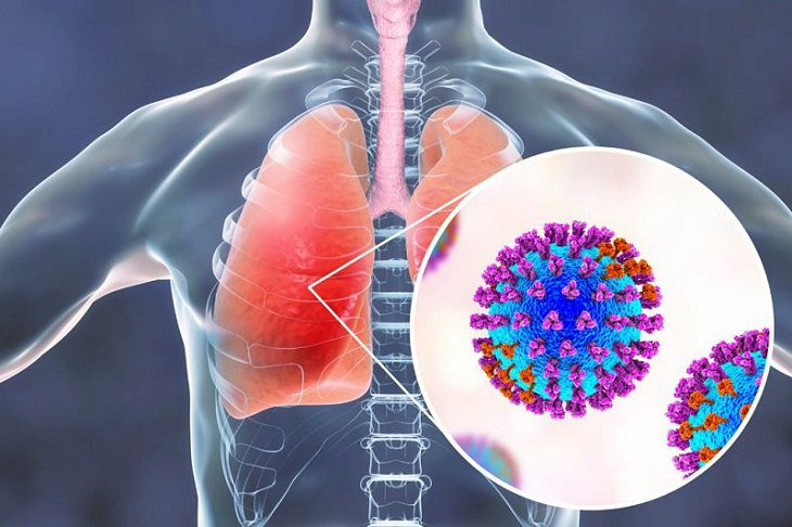 Tác nhân gây viêm phổi có thể do vi khuẩn hoặc virus gây nên