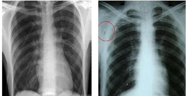 Hình ảnh chụp X-quang phổi