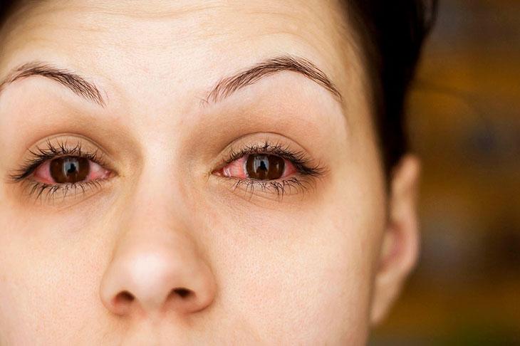 Bệnh nhân tiểu đường đa số sẽ gặp phải một số căn bệnh về võng mạc và khiến thị lực suy giảm