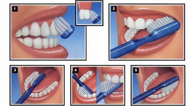 Đánh răng không đúng cách ảnh hưởng trực tiếp đến sức khỏe răng miệng