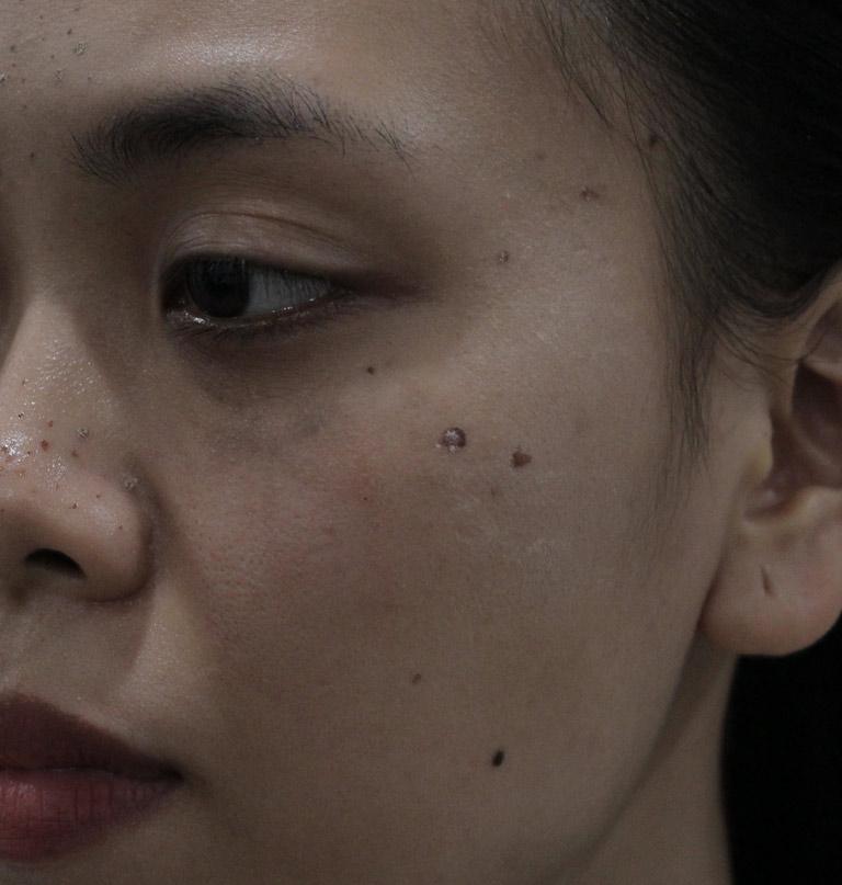 Mụn ẩn, mụn đầu đen khiến da chị Trang trở nên kém sắc