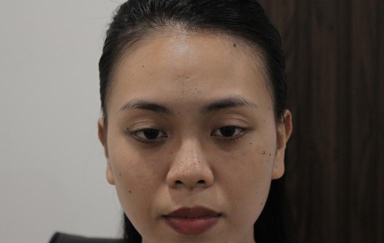 Mụn trứng cá trên da chị Trang không thuyên giảm nhiều dù đã điều trị bằng nhiều cách
