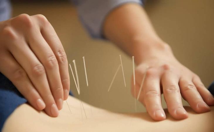 Châm cứu là phương pháp điều trị bênh hiệu quả trong Y học cổ truyền phương Đông