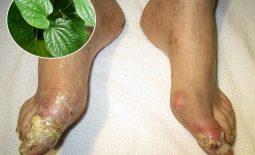 Lá lốt chữa bệnh gout