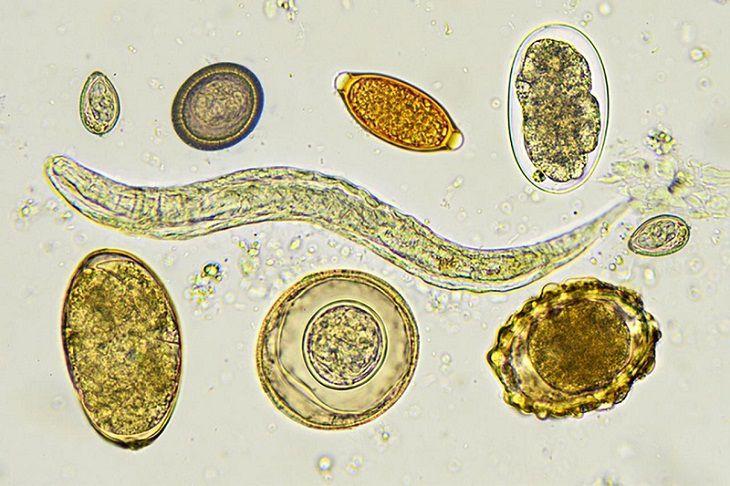 Viêm màng não tăng bạch cầu ái toan do các loại ấu trùng giun sán gây ra