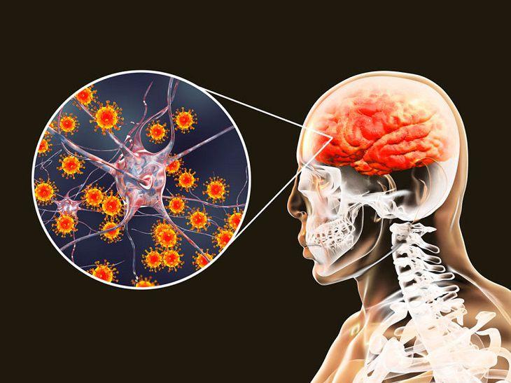 Cần cần đoán phân biệt bênh viêm màng não tăng bạch cầu ái toan với bệnh viêm màng não mủ do vi khuẩn