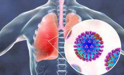 Phác đồ điều trị bệnh viêm phổi nặng do virus cúm A chi tiết