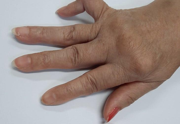 Bệnh gây viêm và đau nhức xương, xơ cứng, sưng khớp ở các khớp tay, chân, gối