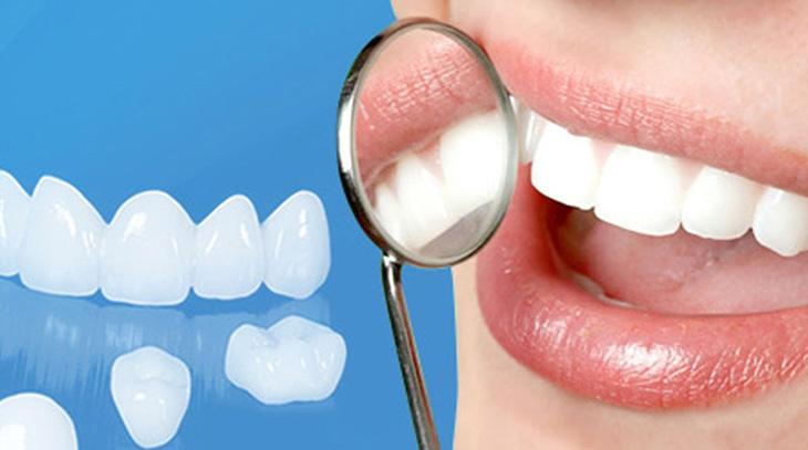 Việc bọc răng sứ mất bao lâu còn phụ thuộc vào tình trạng răng miệng