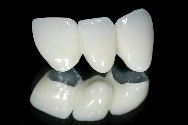 Răng sứ kim loại thường có giá thành khá rẻ