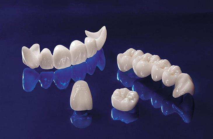 Emax là răng sứ toàn sứ cao cấp được nhiều người ưa chuộng