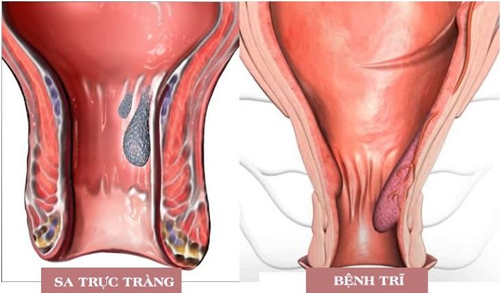 Bệnh trĩ thường bị nhầm với bệnh sa trực tràng