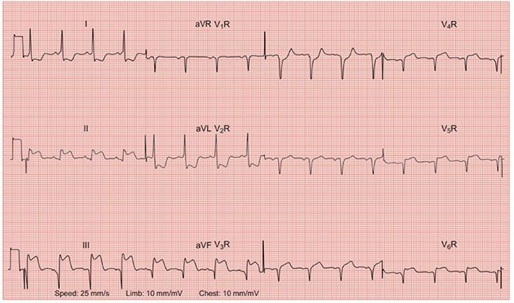 Sóng P biểu hiện sự khử cực ở khu vực tâm nhĩ người bệnh