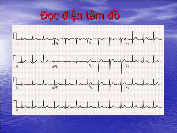 Sóng T cho biết sự tái cực tâm thất và thường dương hoặc âm cùng chiều với QRS