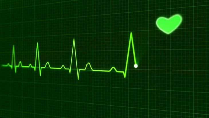điện tâm đồ trong chẩn đoán bệnh mạch vành