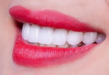 Bọc răng sứ có thể cải thiện được hàm răng nhiều khuyết điểm