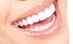 Quy trình trồng răng sứ như thế nào? Chăm sóc sau khi trồng răng