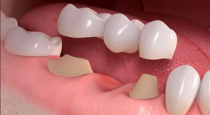 Quy trình trồng răng sứ đúng chuẩn giúp răng được phục hình nhanh hơn