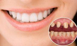 """Chuyên gia giải đáp """"Trồng răng giả có đau không?"""""""