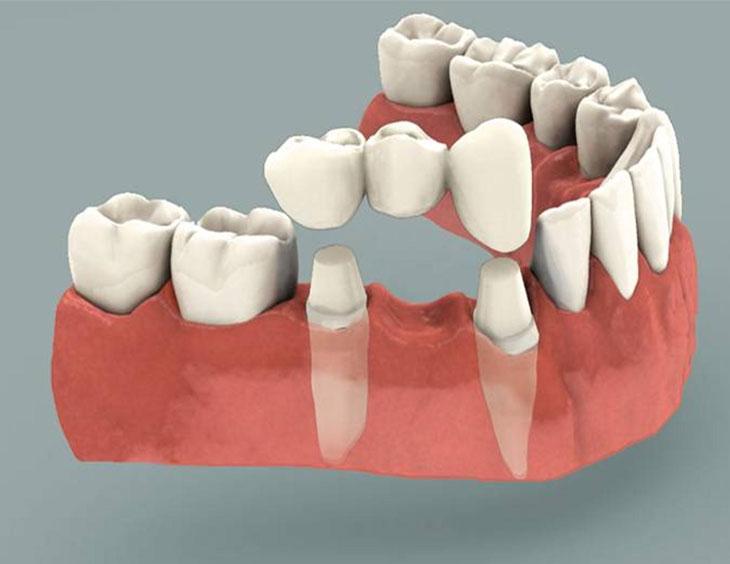 Cầu răng sứ có nhiều ưu điểm hơn so với hàm giả tháo lắp