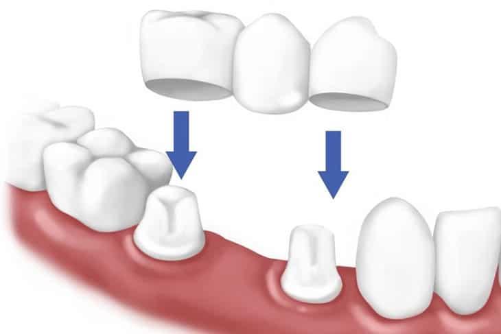 Trồng răng sứ là kỹ thuật nha khoa giúp phục hồi phần răng bị hư tổn