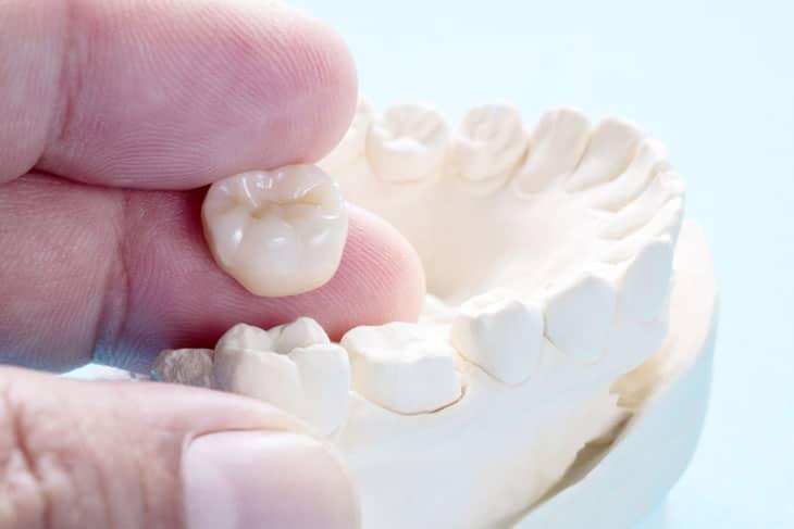 Có nhiều yếu tố tác động tới việc trồng răng sứ mất bao lâu