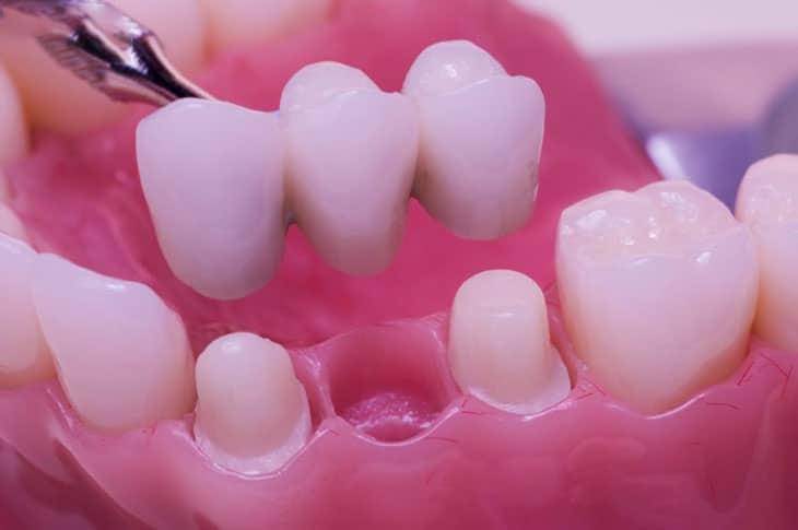Thông thường người bệnh mất khoảng 2 lần hẹn để tiến hành làm răng