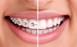 Nên niềng răng hay bọc răng sứ?
